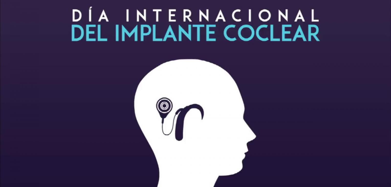 The cochlear implant in Cuba, an achievable reality